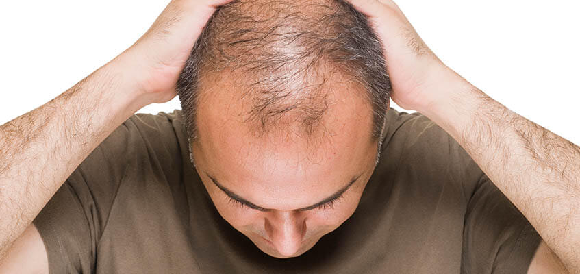 Bald Men and their potential to grow hair