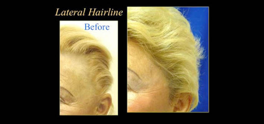 Lateral Hairline patient
