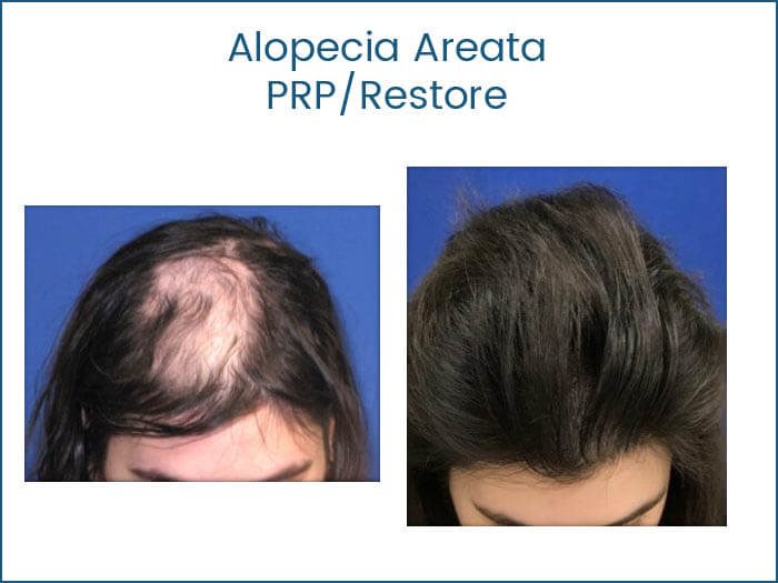 PRP Hair Transplants Florida