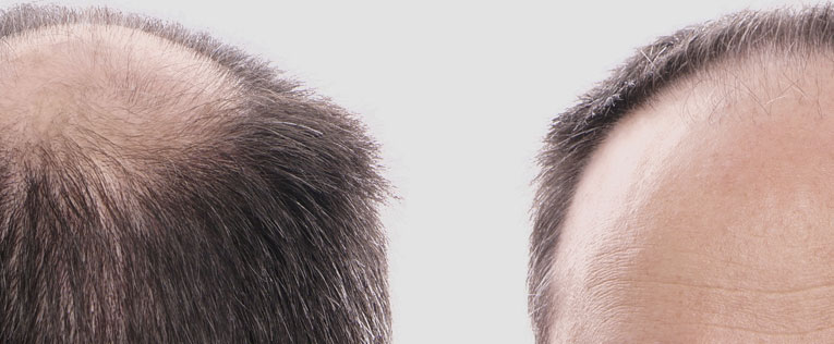Greco Medical Group - Male Hairloss - Bio-FUE