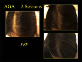 Non-Surgical Hair Restoration - Patient Results