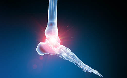 Foot and Ankle Pain - Non-Surgical Areas Treated