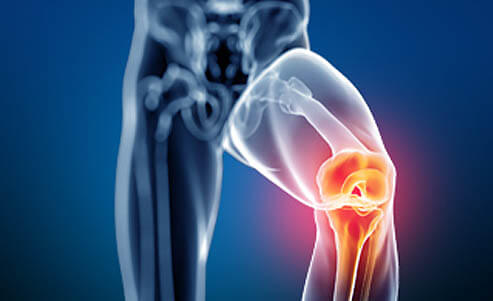 Knee Pain - Non-Surgical Areas Treated