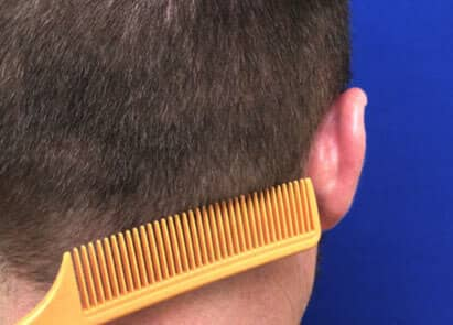 Greco-FUT Undetectable Donor Site - hair transplant and restoration